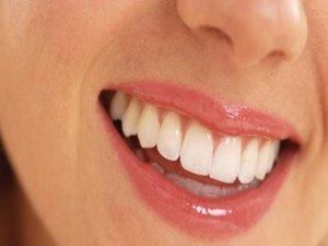 Sağlıklı Diş Eti Nasıl Olmalı Nasıl Korunmalı?