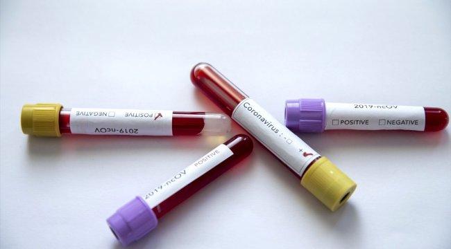 Koronavirüse karşı ilacı üreten şirketin hisseleri yüzde 5 arttı